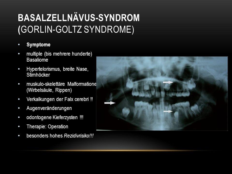 Basalzellnävus-Syndrom (Gorlin-Goltz syndrome)