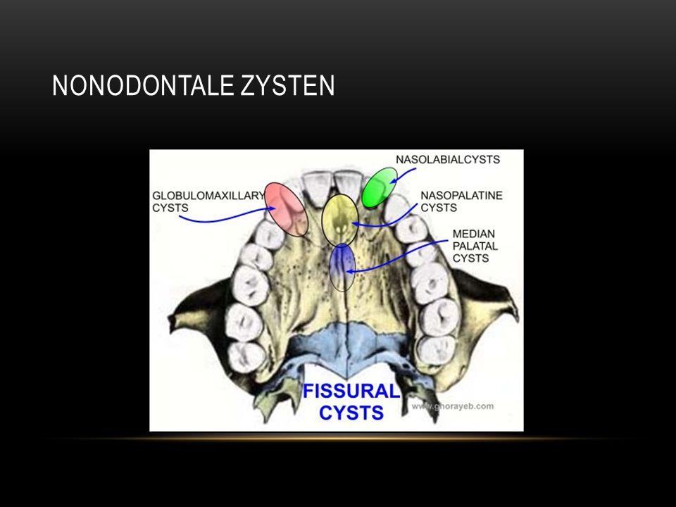 Nonodontale zysten
