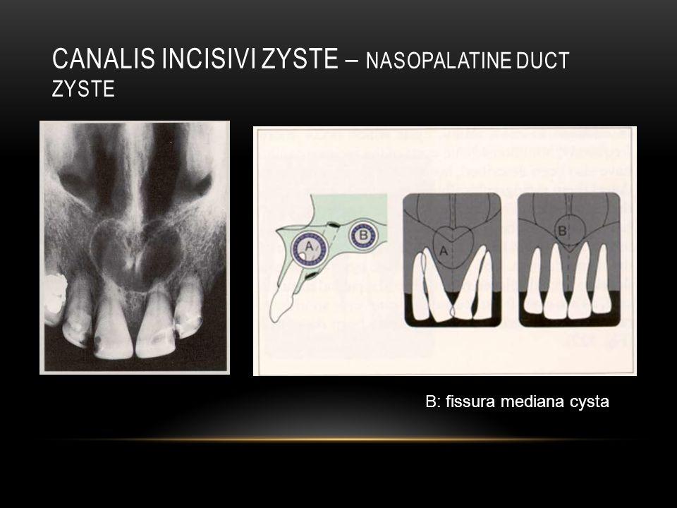 Canalis incisivi zyste – nasopalatine duct Zyste