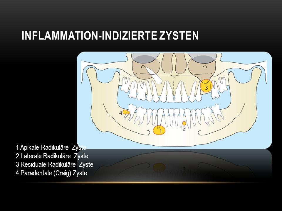 Inflammation-indizierte zysten