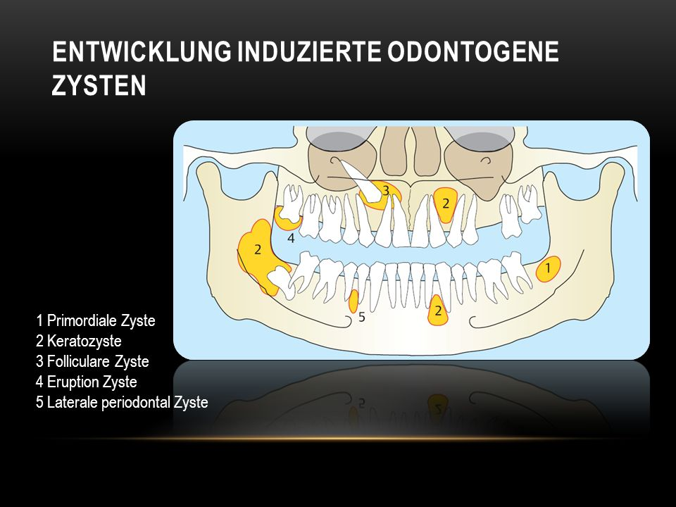 Entwicklung induzierte Odontogene Zysten
