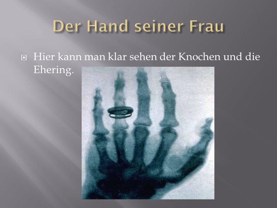 Der Hand seiner Frau Hier kann man klar sehen der Knochen und die Ehering.