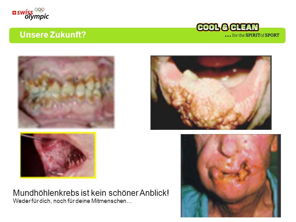 Mundhöhlenkrebs ist kein schöner Anblick!
