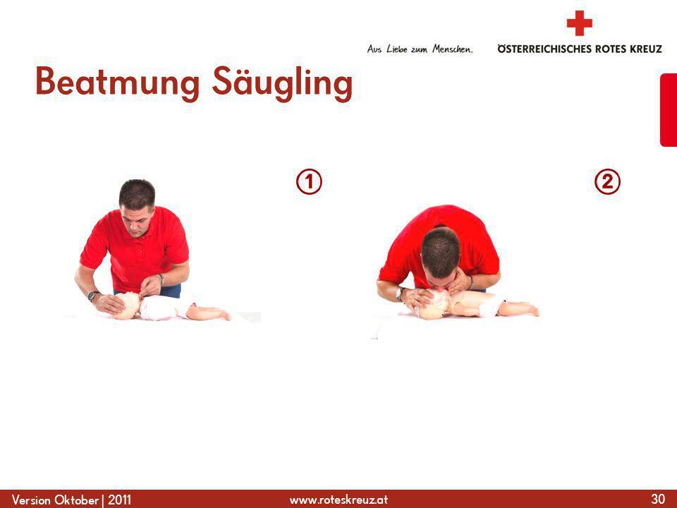 Beatmung Säugling