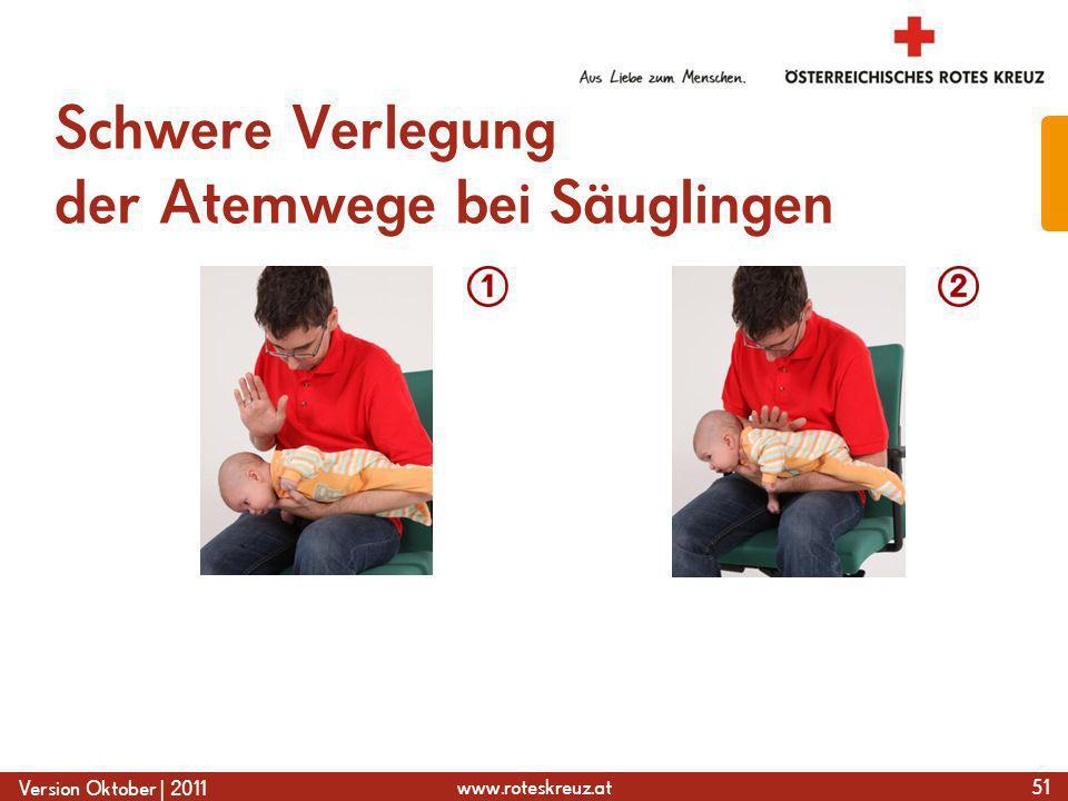 Schwere Verlegung der Atemwege bei Säuglingen