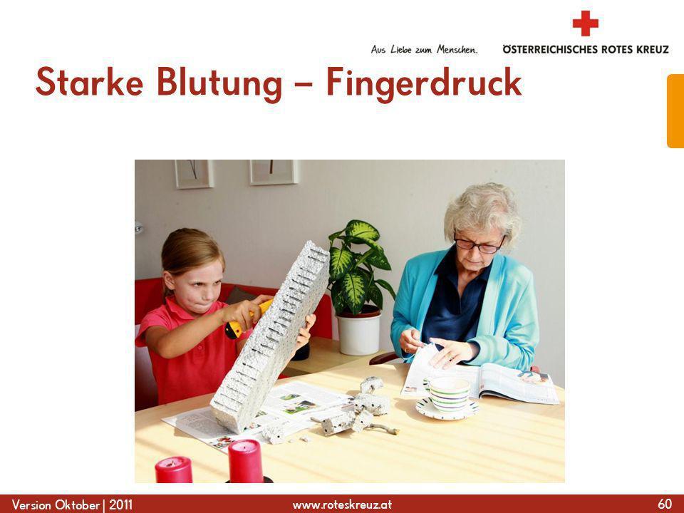 Starke Blutung – Fingerdruck