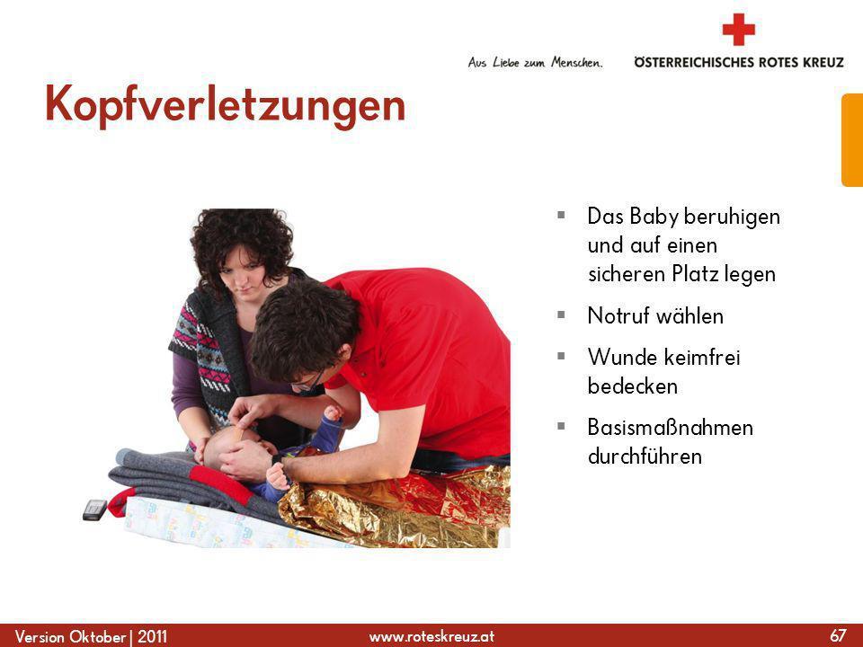 Kopfverletzungen Das Baby beruhigen und auf einen sicheren Platz legen