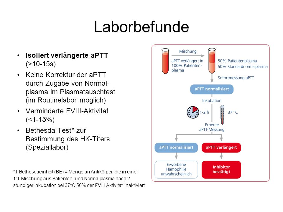 Laborbefunde Isoliert verlängerte aPTT (>10-15s)