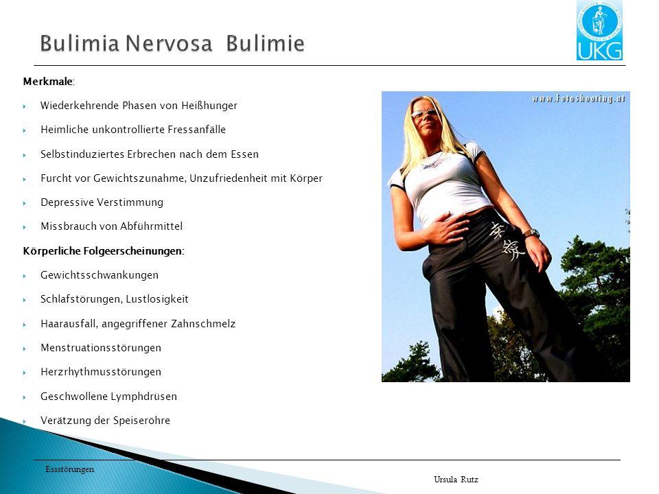 Bulimia Nervosa Bulimie