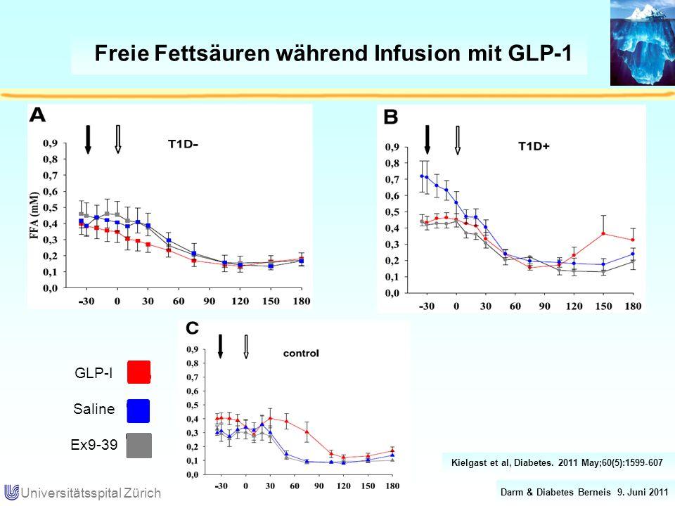 Freie Fettsäuren während Infusion mit GLP-1