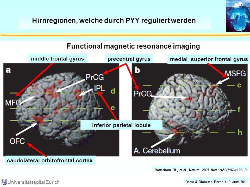 Hirnregionen, welche durch PYY reguliert werden