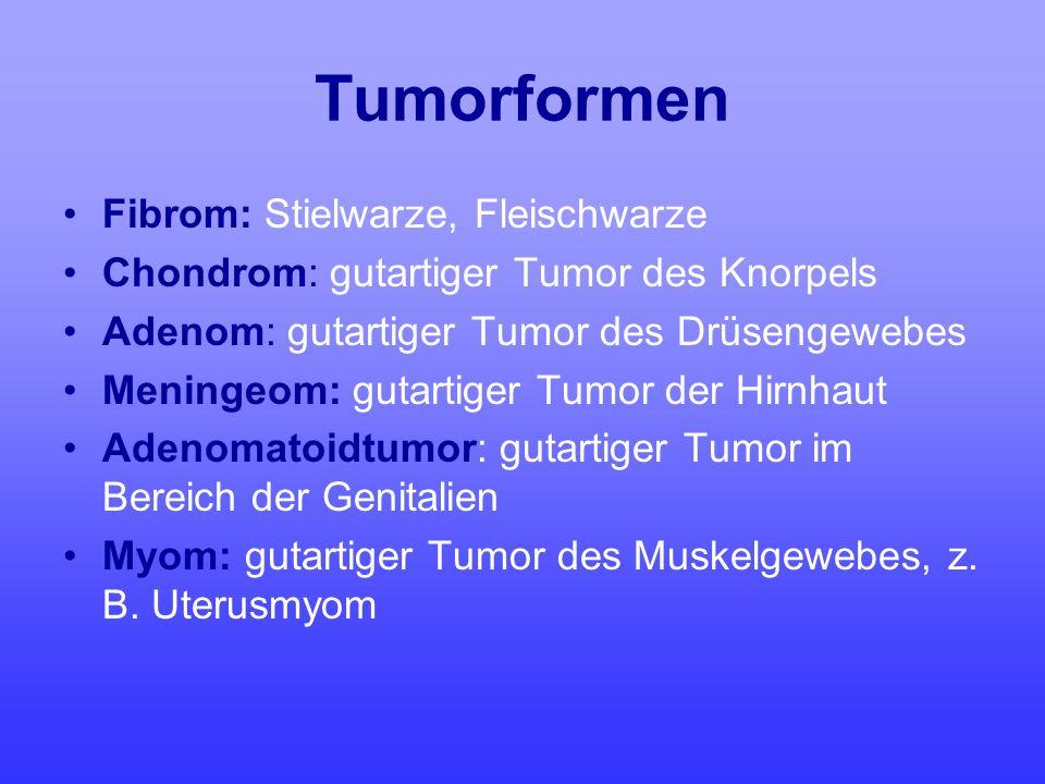 Tumorformen Fibrom: Stielwarze, Fleischwarze