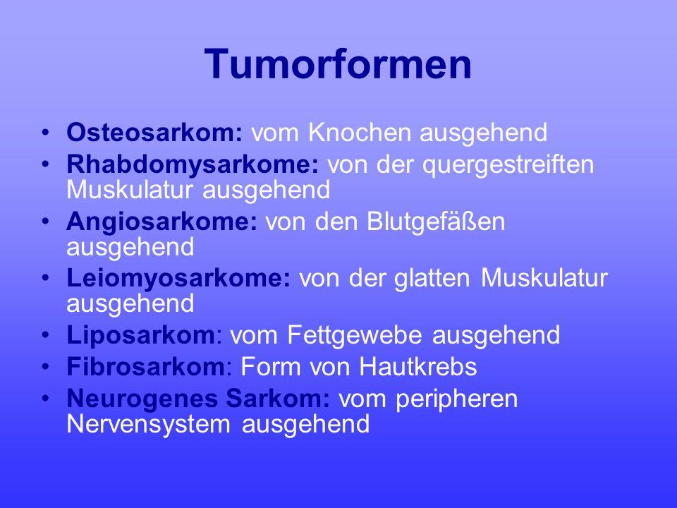Tumorformen Osteosarkom: vom Knochen ausgehend