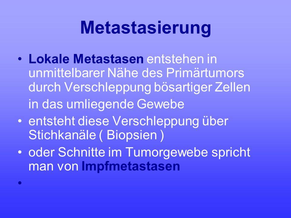 Metastasierung Lokale Metastasen entstehen in unmittelbarer Nähe des Primärtumors durch Verschleppung bösartiger Zellen.