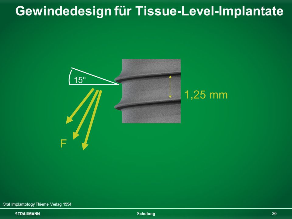 Gewindedesign für Tissue-Level-Implantate