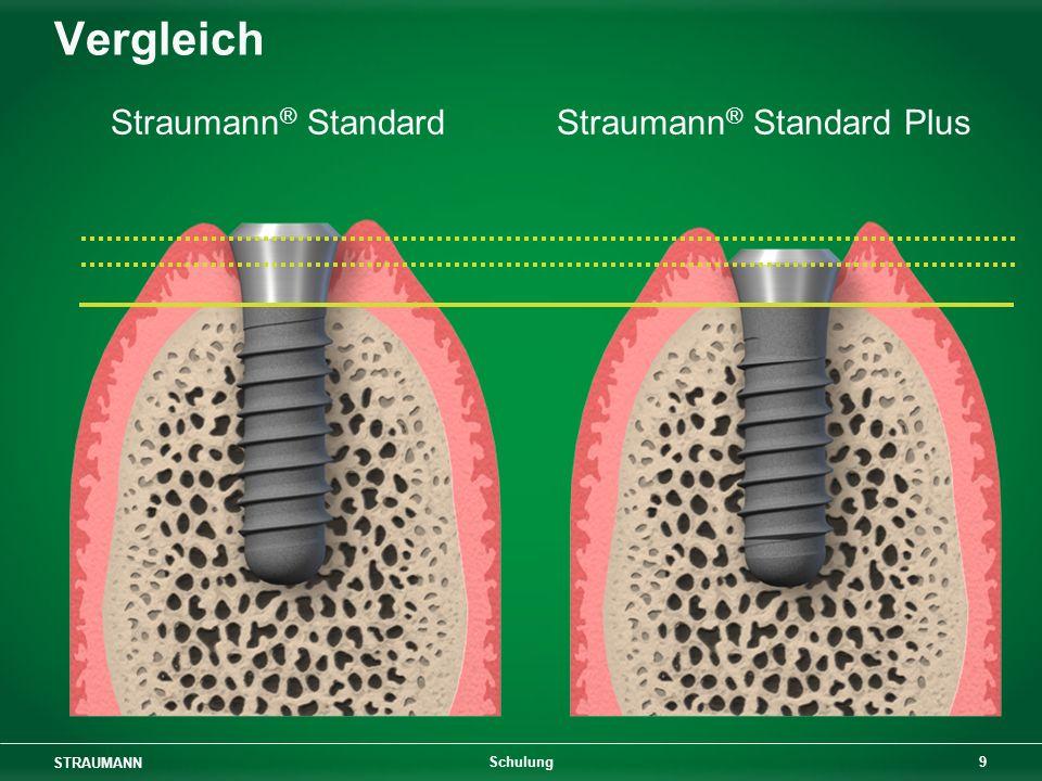 Straumann® Standard Plus