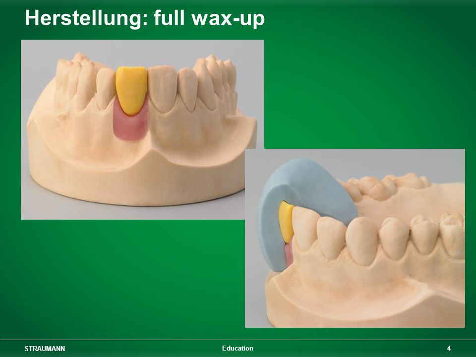 Herstellung: full wax-up