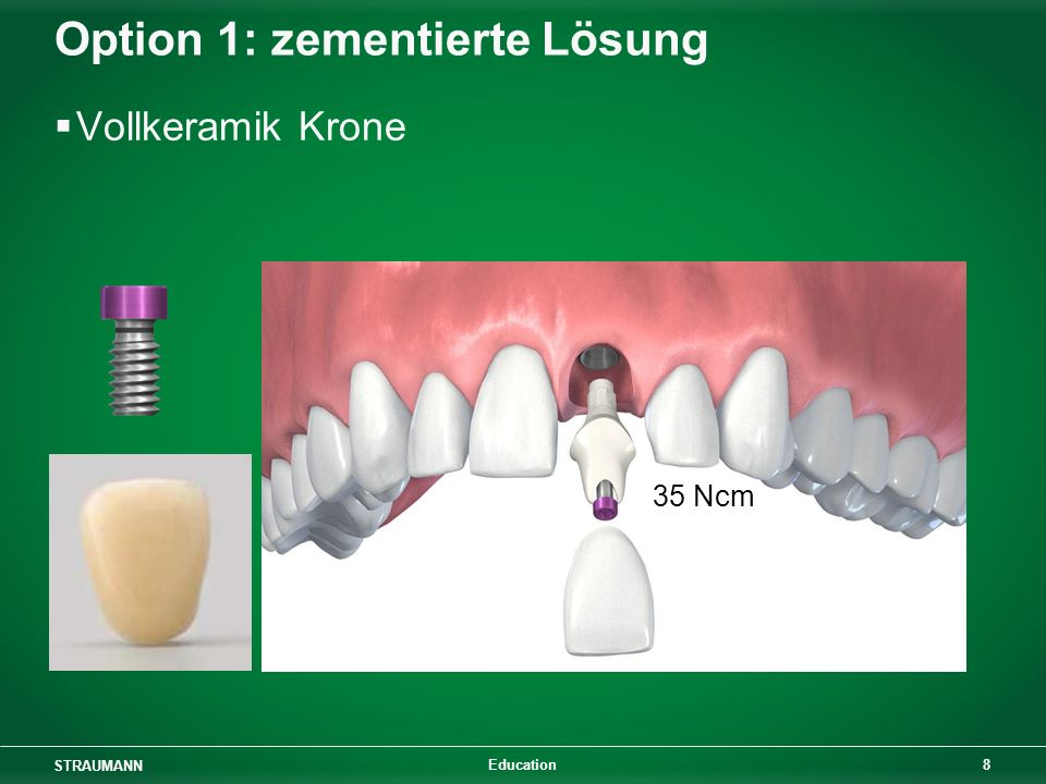 Option 1: zementierte Lösung