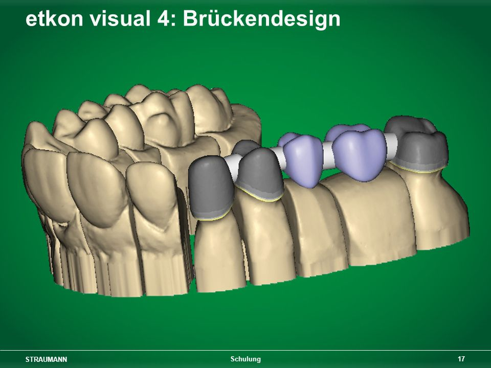 etkon visual 4: Brückendesign