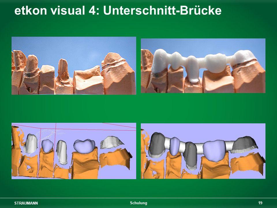 etkon visual 4: Unterschnitt-Brücke