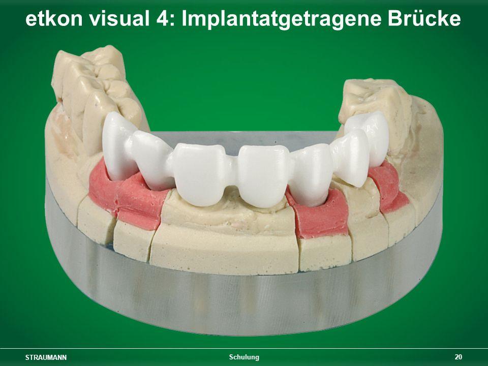 etkon visual 4: Implantatgetragene Brücke
