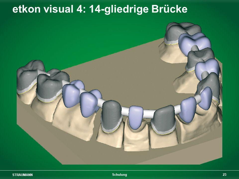 etkon visual 4: 14-gliedrige Brücke