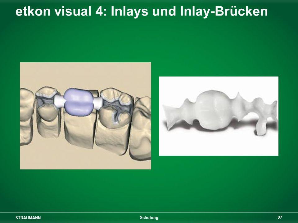 etkon visual 4: Inlays und Inlay-Brücken