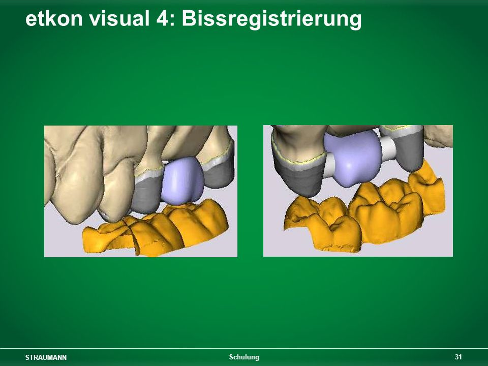 etkon visual 4: Bissregistrierung