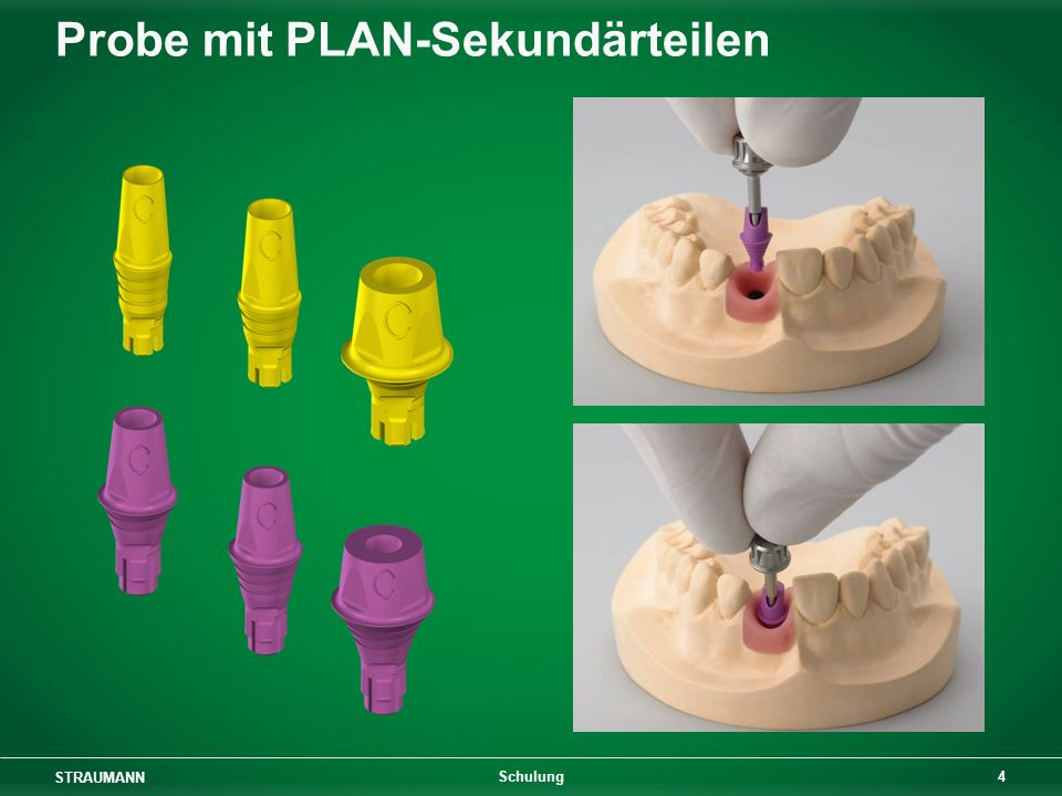 Probe mit PLAN-Sekundärteilen