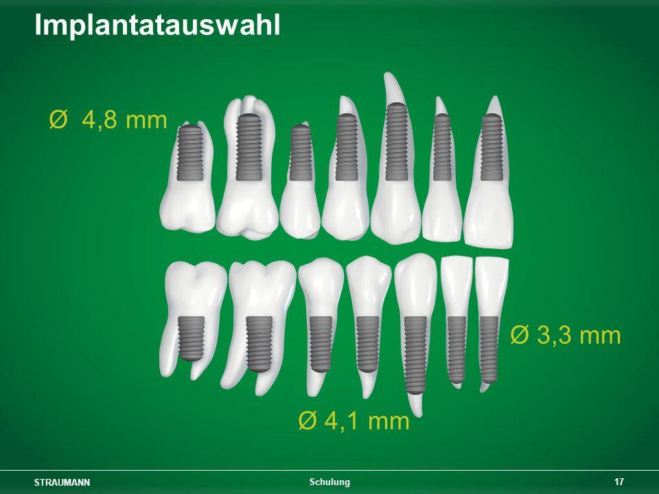 Implantatauswahl Ø 4,8 mm Ø 3,3 mm Ø 4,1 mm Schulung