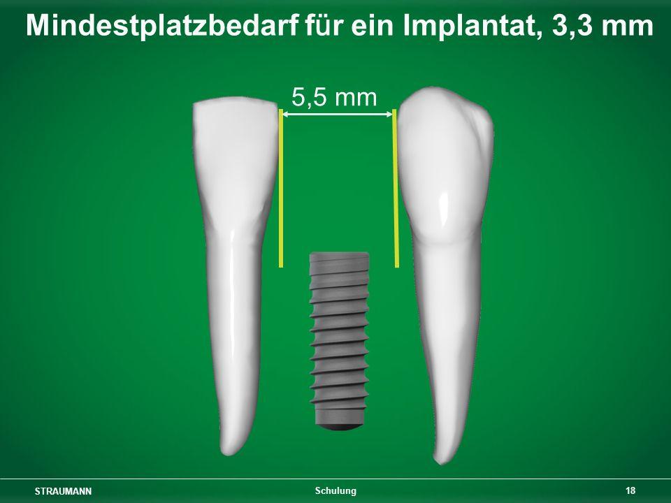 Mindestplatzbedarf für ein Implantat, 3,3 mm