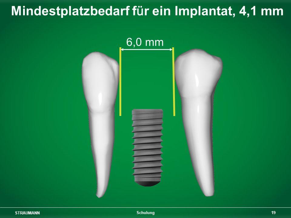 Mindestplatzbedarf für ein Implantat, 4,1 mm
