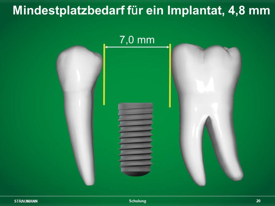 Mindestplatzbedarf für ein Implantat, 4,8 mm