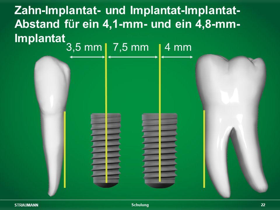 Zahn-Implantat- und Implantat-Implantat-Abstand für ein 4,1-mm- und ein 4,8-mm-Implantat