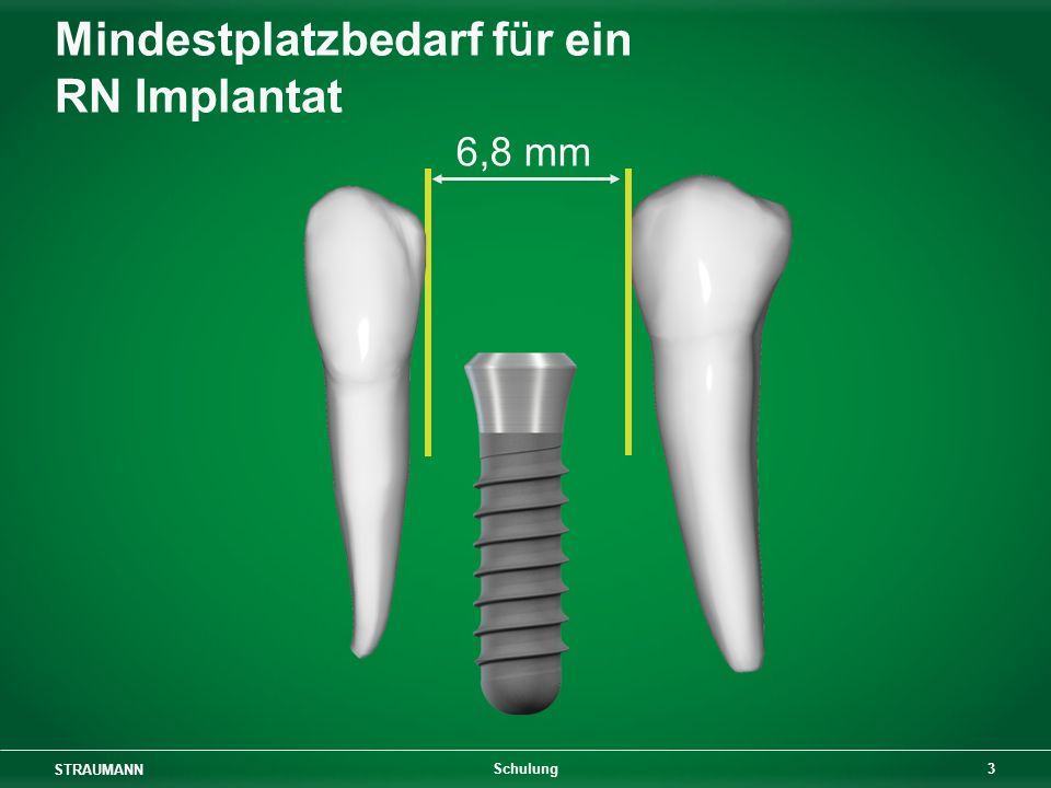 Mindestplatzbedarf für ein RN Implantat