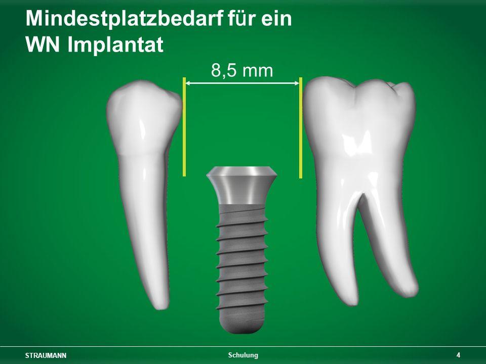 Mindestplatzbedarf für ein WN Implantat