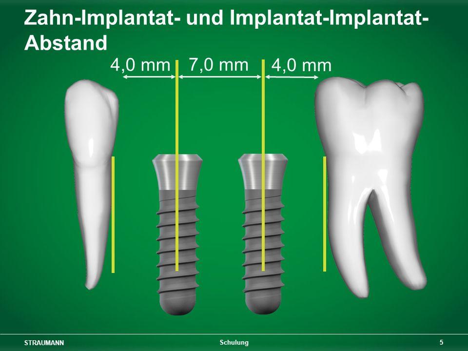 Zahn-Implantat- und Implantat-Implantat-Abstand