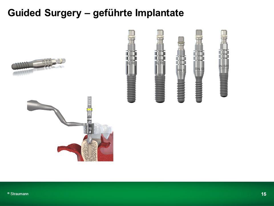 Guided Surgery – geführte Implantate
