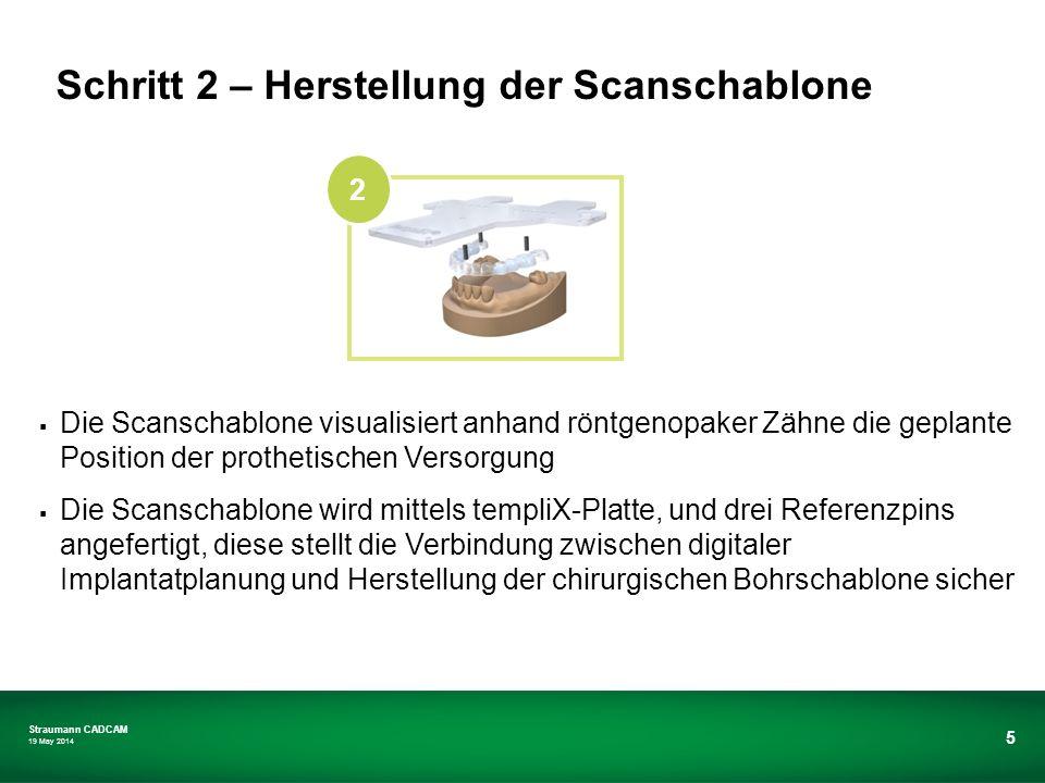 Schritt 2 – Herstellung der Scanschablone