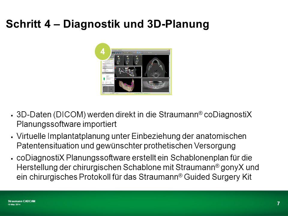 Schritt 4 – Diagnostik und 3D-Planung