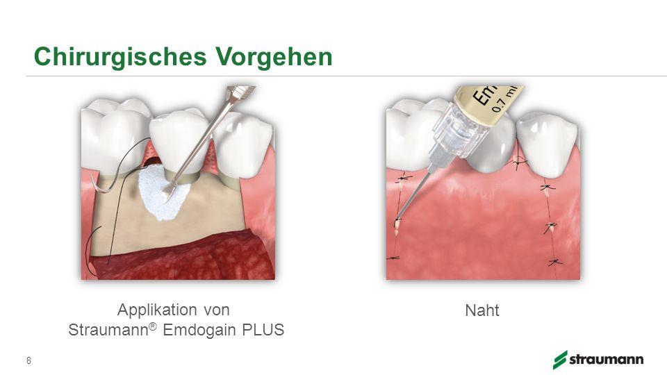 Chirurgisches Vorgehen