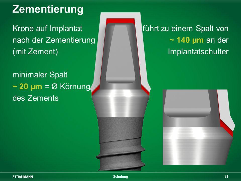 Zementierung Krone auf Implantat nach der Zementierung (mit Zement)