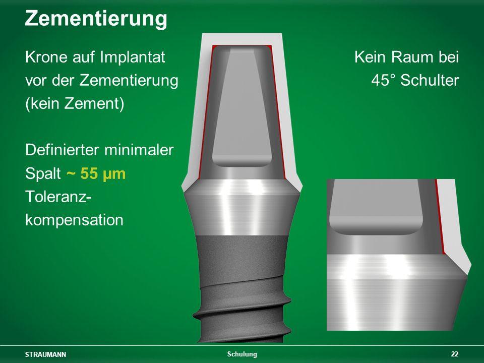 Zementierung Krone auf Implantat vor der Zementierung (kein Zement)