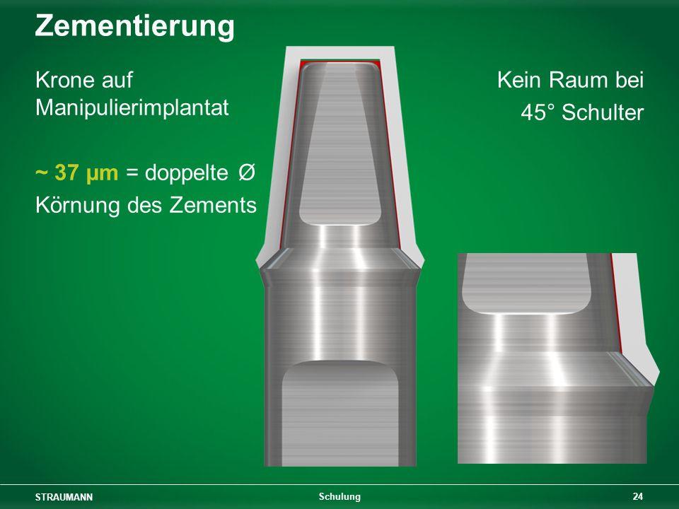 Zementierung Krone auf Manipulierimplantat ~ 37 µm = doppelte Ø