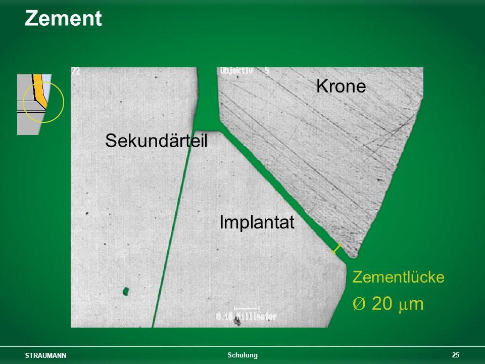 Zement Krone Sekundärteil Implantat Zementlücke Ø 20 µm Schulung