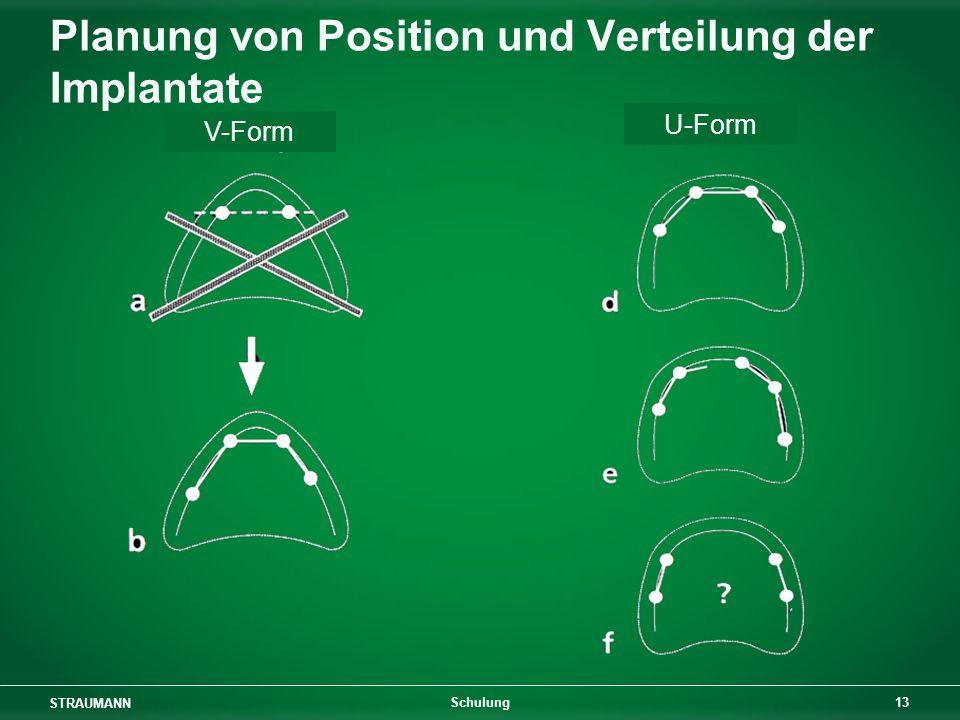 Planung von Position und Verteilung der Implantate