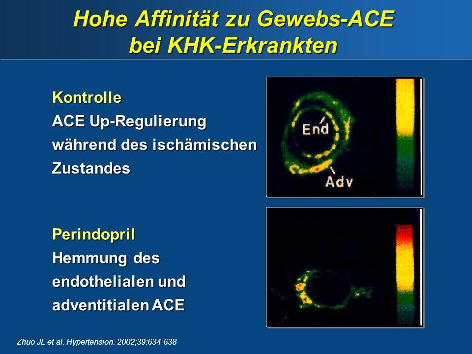 Hohe Affinität zu Gewebs-ACE bei KHK-Erkrankten