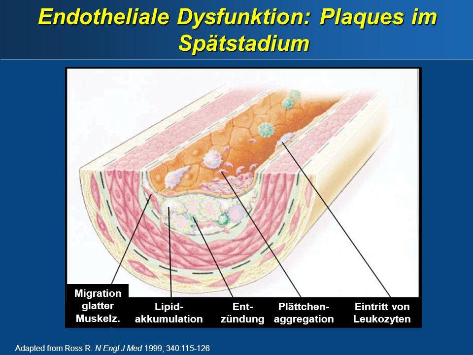Endotheliale Dysfunktion: Plaques im Spätstadium