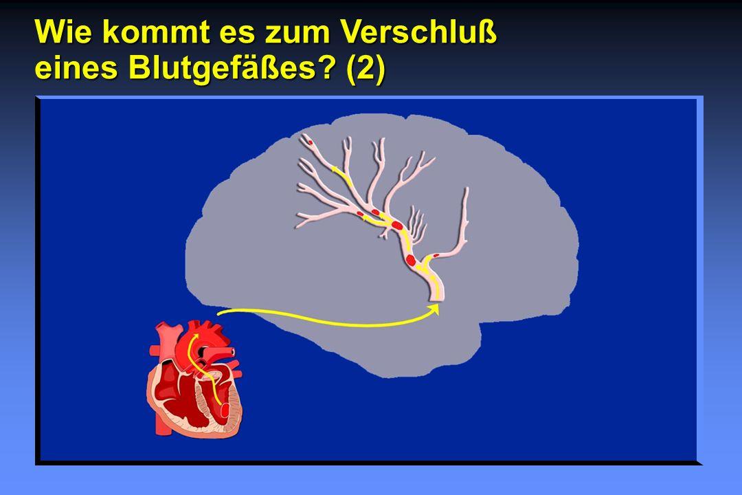 Wie kommt es zum Verschluß eines Blutgefäßes (2)