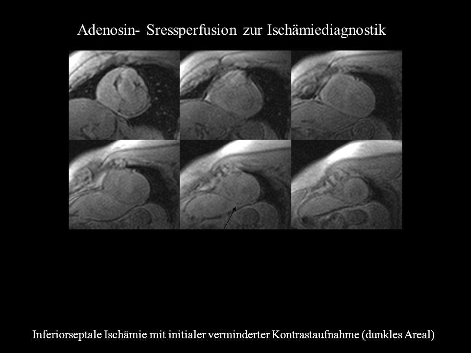 Adenosin- Sressperfusion zur Ischämiediagnostik